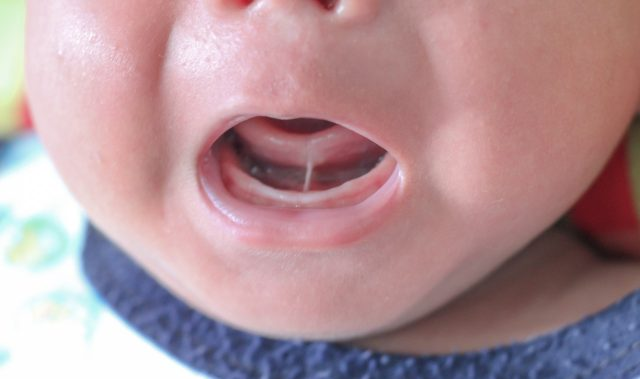 Tongue Tie Division Available at Paediatric Gut Investigation Clinic in Dorking, Surrey.